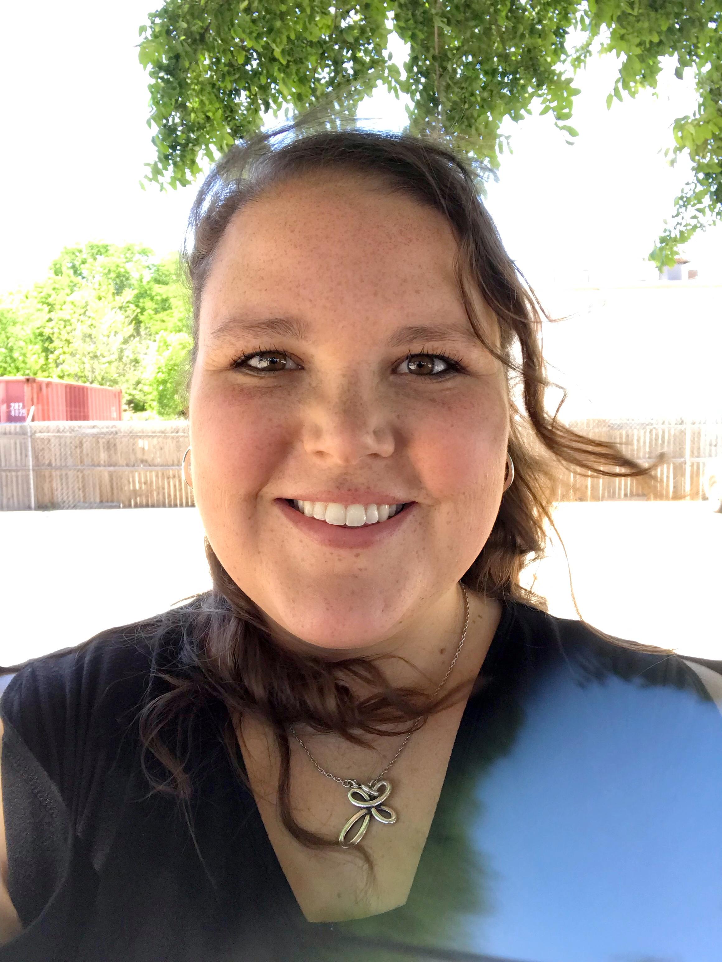 Valerie M, Sleeve Gastrectomy 2019